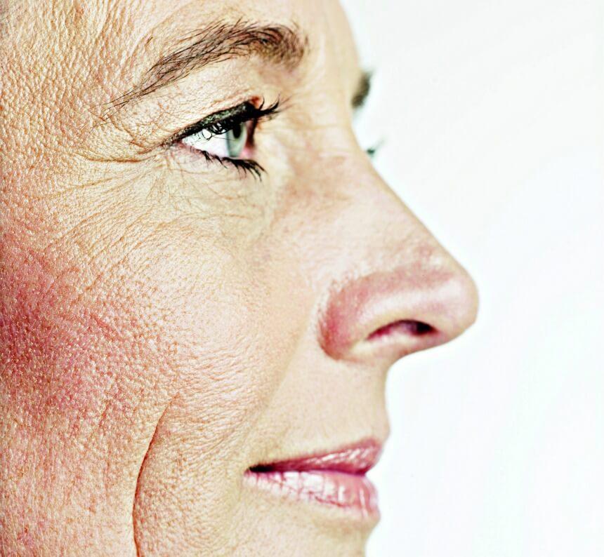 Hudkraeft Symptomer Billeder - symptomer 2020