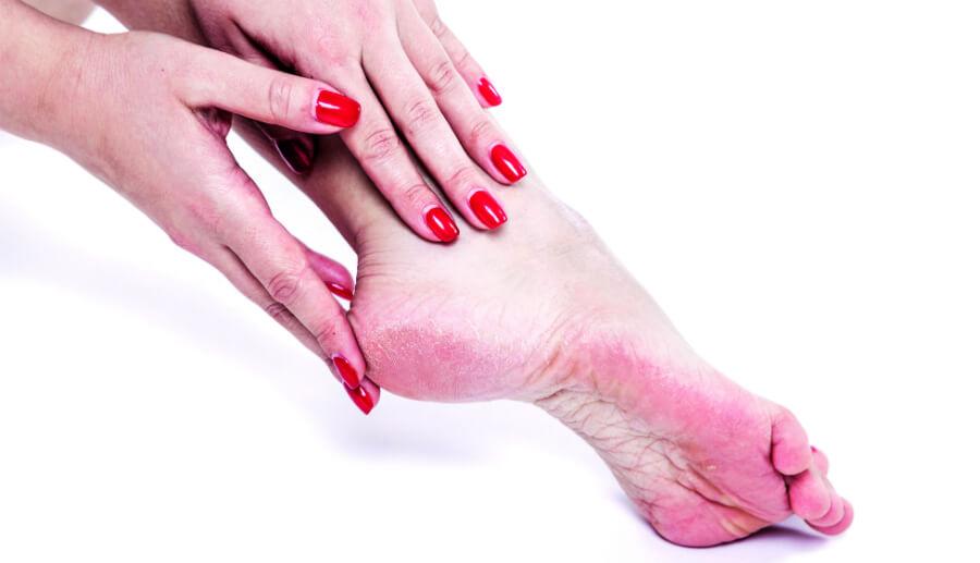 fjerne hård hud på hælen