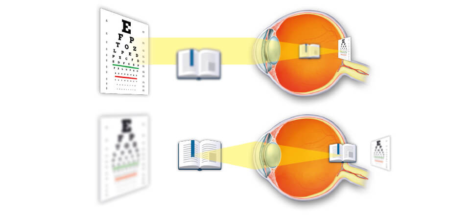 Øjets linse bliver mere stiv med alderen. Alderssyn opfattes af mange som langsynethed