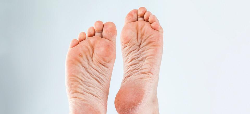 Der er flere slags fodproblemer at være opmærksom på ved overvægt