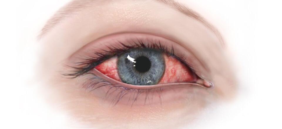 Røde øjne er tegn på, at der er noget galt