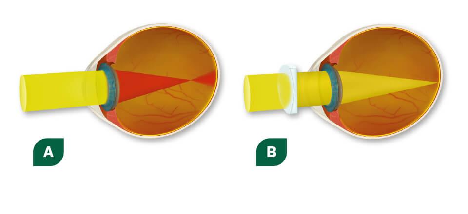 Nærsynethed skyldes en brydningsfejl i øjet
