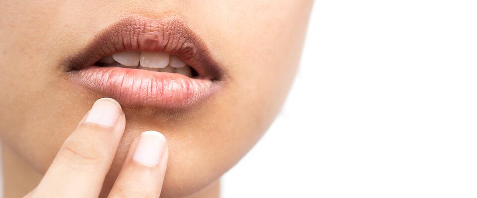 Tænder og mund under og efter kræftbehandling