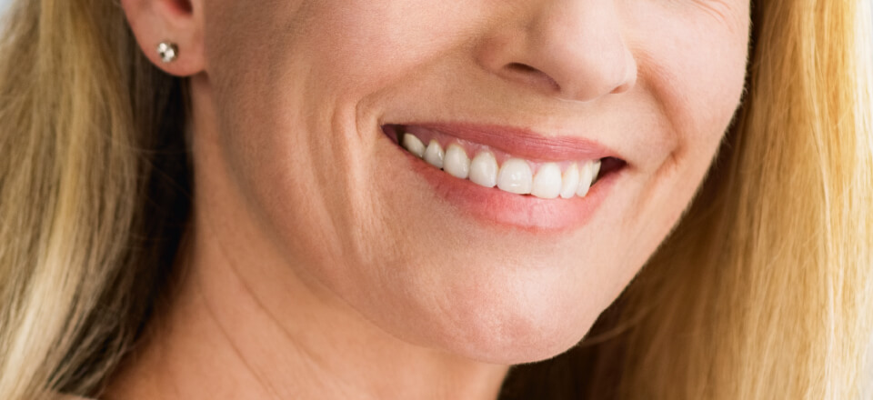 Karina fik smilet tilbage med en tandprotese